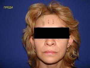 http://image.nauka.bg/bio/med/lozanov/Mesotherapy%20with%20hyaluronic%20acid1.jpg