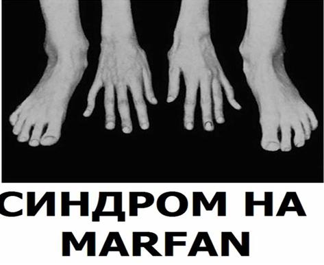 http://image.nauka.bg/bio/med/marfan/marfon2.png